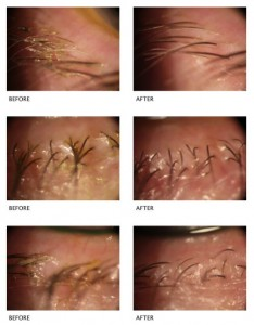 before-after-blepharitis-treatment-gallery